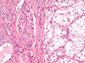 Clear_cell_renal_cell_carcinoma_high_mag_cropped
